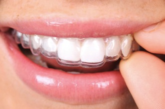 Do it yourself clear aligner orthodontic treatment benefitsrisks we understand that everyone wants to save money in any way they can however diy orthodontic treatment is dangerous and can permanently damage your teeth solutioingenieria Choice Image