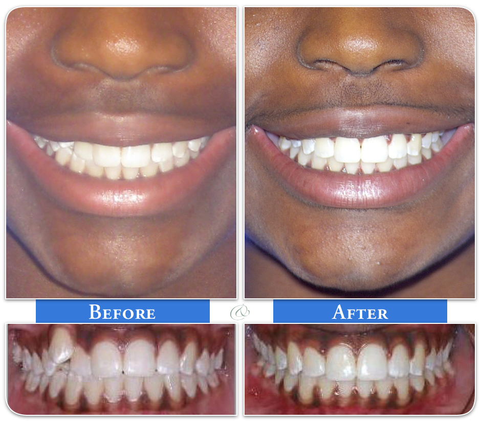 Papasikos Orthodontics Before and After