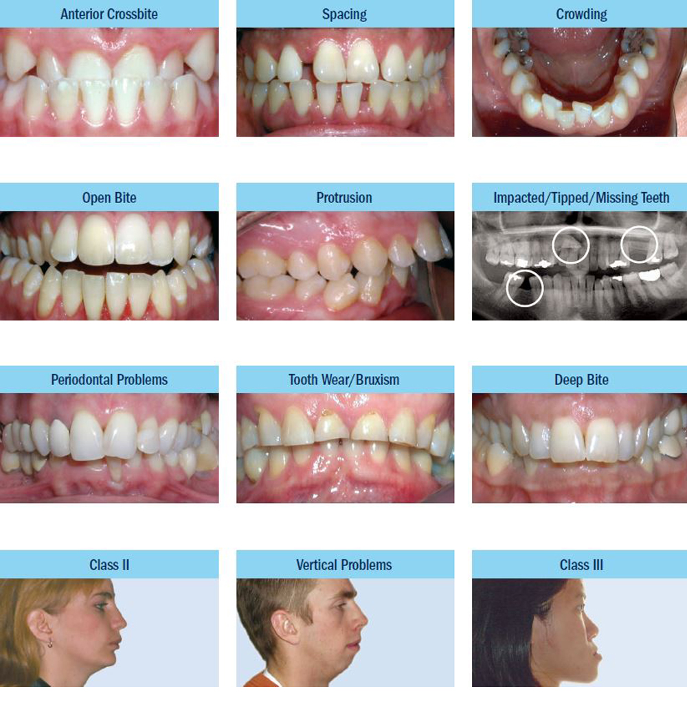 Papasikos Orthodontics Common Problems