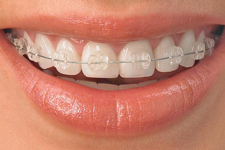 Papasikos Orthodontics Clear Braces