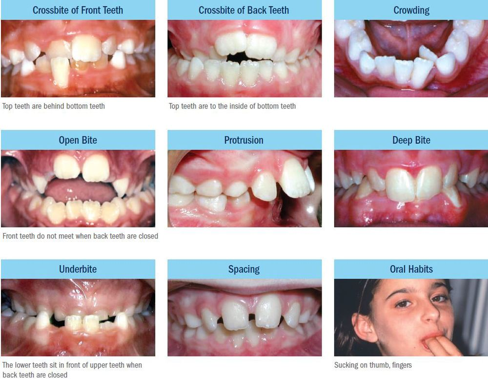 Papasikos Orthodontics Common Problems Captured Montclair NJ