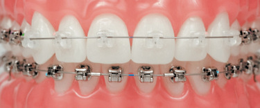 Everything You Need To Know About Clear Braces Papasikos
