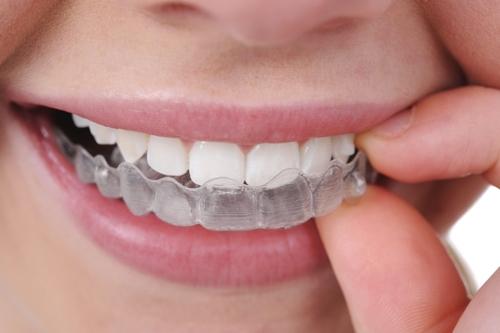 Papasikos Orthodontics Metal Braces